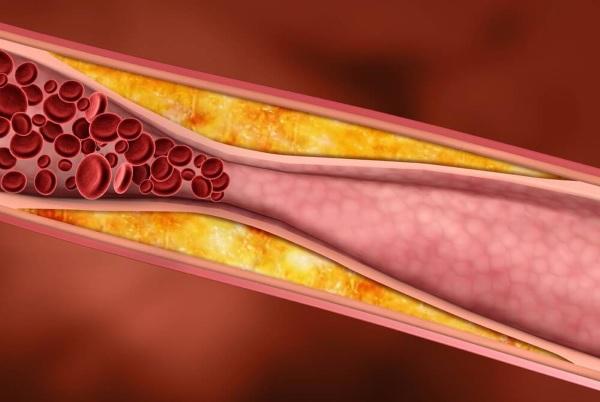 Как снизить холестерин в крови в домашних условиях быстро и без лекарств – народные средства