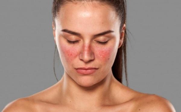 Красная волчанка. Что это за болезнь, симптомы, причины. Как передается, лечение