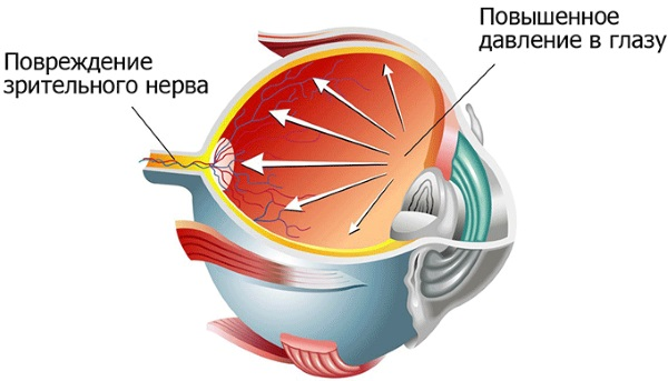 Красный глаз у ребенка. Причины с гноем и без, чешется. Лечение, промывание чаем