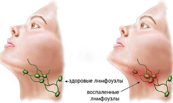 Лимфосистема человека. Схема в картинках, функции, заболевания, чистка. Методы, средства, массаж