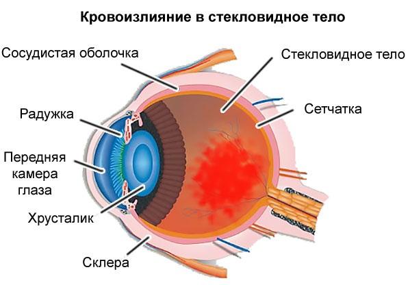 Лопаются сосуды в глазах. Причины, что делать. Как укрепить сосуды: витамины, лекарства, таблетки