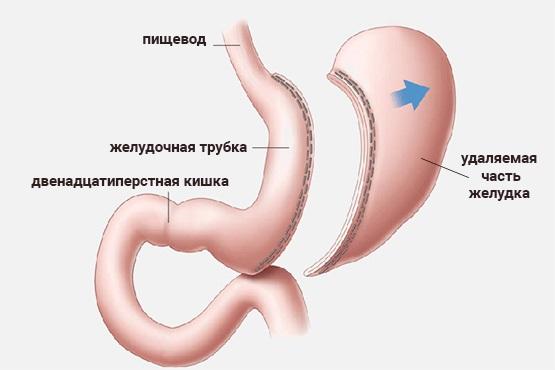 Резекция желудка для похудения. Цена, как проходит процедура, виды при ожирении, диета после