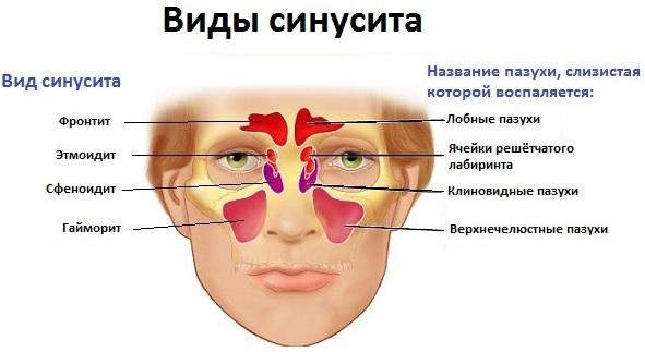 Риносинусит. Симптомы и лечение у взрослых, детей: острый, хронический, полипозный, гнойный, катаральный