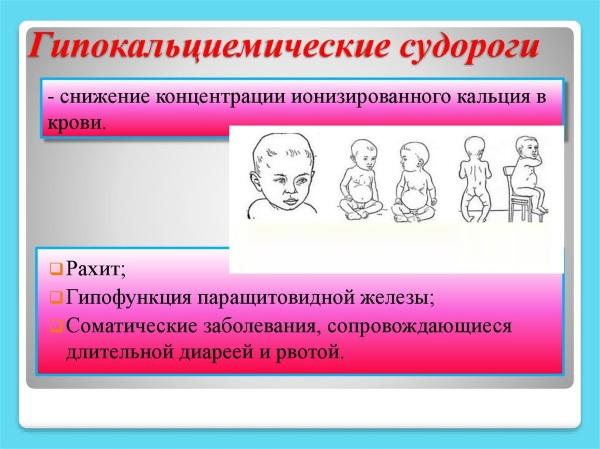 Судороги у детей при температуре. Причины, первая помощь, последствия спазмофилии, фебрильные