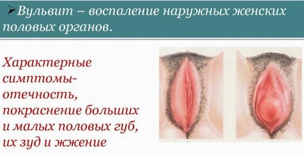 Вульвит у женщин. Симптомы и лечение. Свечи, мази, народные средства, антибиотики