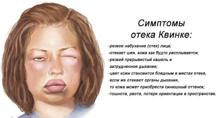 АДСМ прививка. Расшифровка взрослым, детям. Куда, от чего делают, график, последствия
