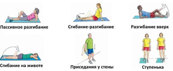 Артрит тазобедренного сустава. Симптомы и лечение у пожилых, детей. Препараты, народные средства