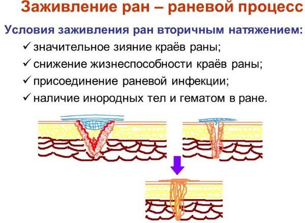 Бобровая струя. Лечебные свойства, показания к применению, как приготовить и принимать