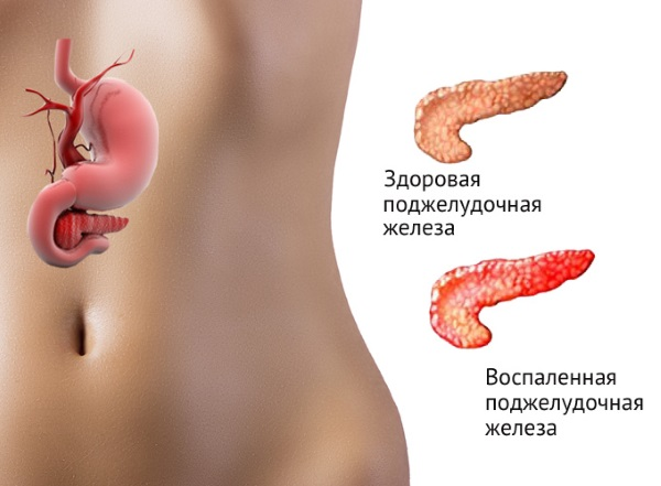 Боль в левом боку на уровне талии со спины, спереди, сбоку у женщин. Причины, лечение