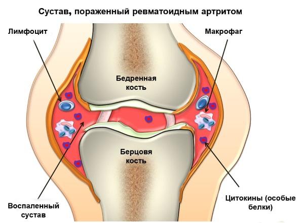Боль в локтевом суставе правой, левой руки при сгибании и разгибании, поднятии тяжести. Причины, лечение