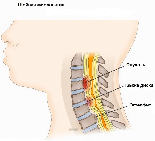 Боль в спине в области лопаток. Причины слева, справа, если отдает. Лечение, препараты