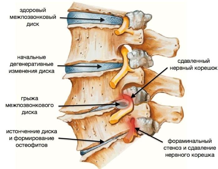Растяжка позвоночника. Упражнения для спины, йога, тренажеры при грыже, остеохондрозе, сколиозе