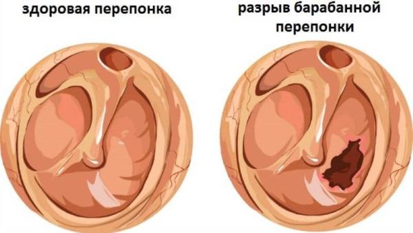 Борная кислота в ухо. Применение взрослым, детям, при беременности. Инструкция