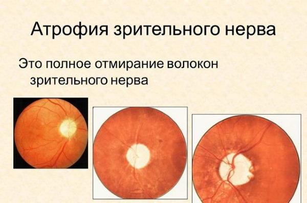 Глаукома. Причины, симптомы, лечение. Препараты, народные средства