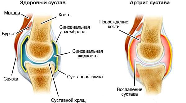 Лечебные свойства полевого хвоща, отличия от ядовитого. Применение травы в медицине и косметологии
