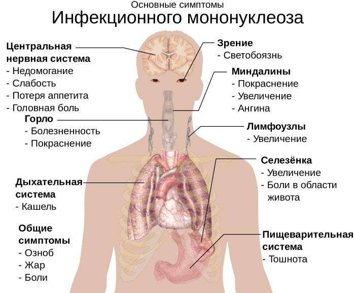 Инфекционный мононуклеоз у детей. Симптомы, лечение, клинические рекомендации, последствия