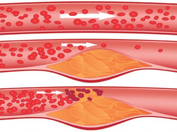 Калина красная. Полезные свойства и противопоказания. Рецепты