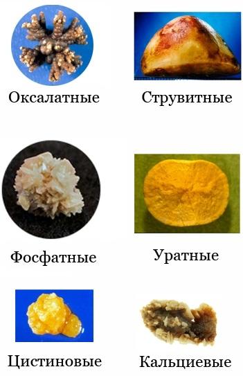 Камни в мочевом пузыре. Симптомы у женщин, причины, лечение народными средствами, таблетками, лазером