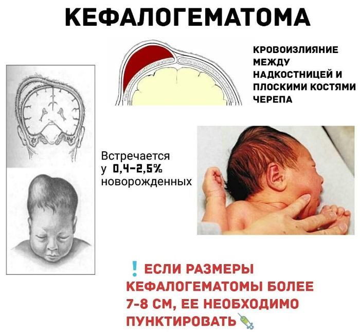 Кефалогематома на голове у новорожденного. Последствия, причины, лечение, реабилитация