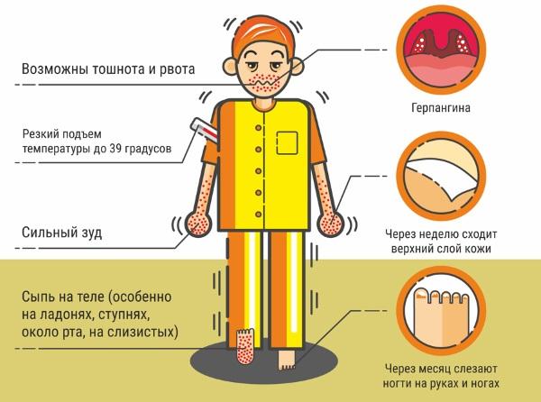 Вирус Коксаки у детей. Симптомы, чем лечить, инкубационный период