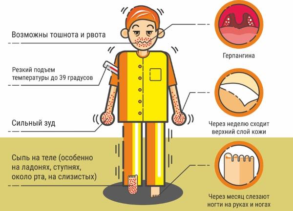 Лечение герпесной ангины у детей. Народные средства, антибиотики. Виды, симптомы, последствия