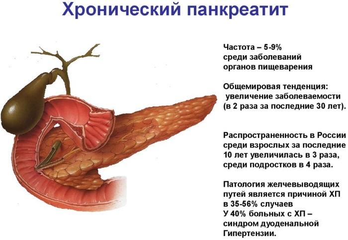 Описторхоз у взрослых. Симптомы и лечение. Народные средства, препараты, клинические рекомендации
