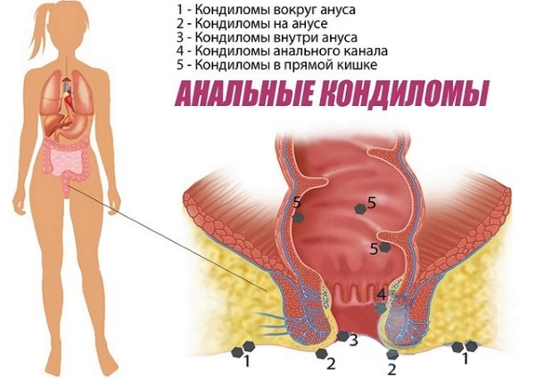 Остроконечные кондиломы у женщин. Фото, причины, стадии, анализы, лечение