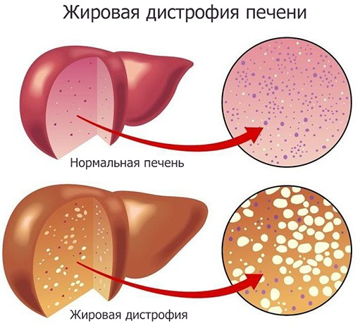 Признаки больной печени у женщины на коже, лице, симптомы, лечение