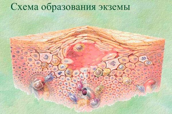 Розовый лишай у человека. Симптомы, лечение, причины возникновения у детей, взрослых. Народные средства, препараты, мази