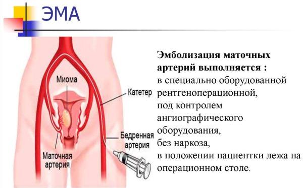 Субмукозный узел в матке, миома при беременности, менопаузе. Оперировать или нет, удаление, лечение