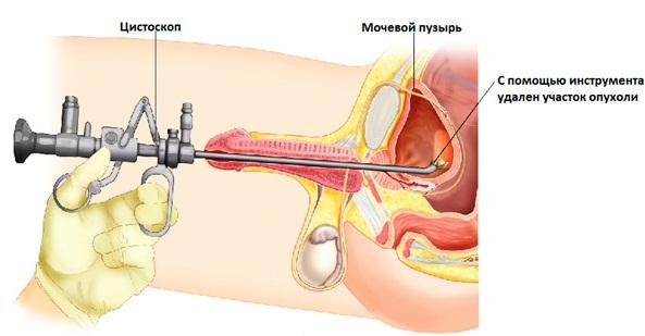 Цистоскопия мочевого пузыря у женщин, мужчин и детей. Описание процедуры, подготовка пациента, результаты обследования