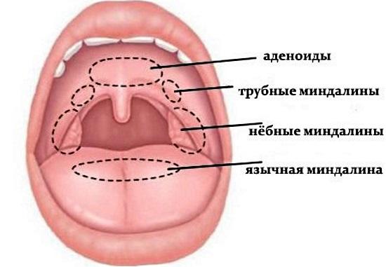 Увеличенные миндалины у ребенка. Причины и лечение, народные средства, препараты, процедуры