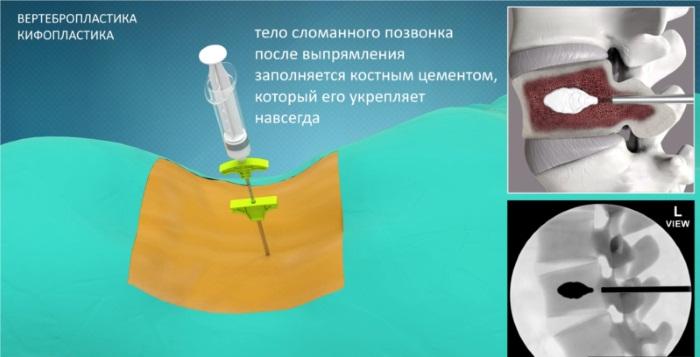 Вертебропластика позвоночника. Цена, реабилитация после операции