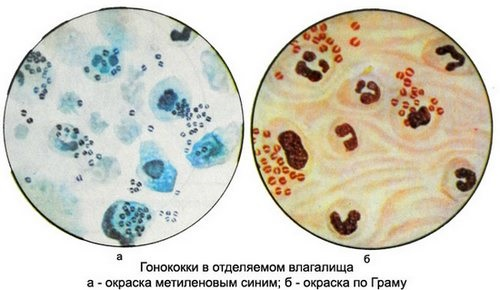 Анализ мазка по гинекологии. Расшифровка лейкоциты, флора. Норма по возрасту