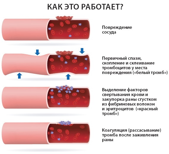 Анализ на свертываемость крови. Название, когда сдают, цена Инвитро, гемотест