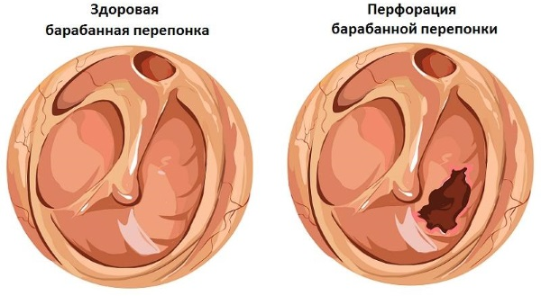 Барокамера. Показания, что лечит при беременности, детям. Противопоказания