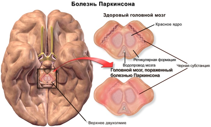 Болезнь Паркинсона. Симптомы и признаки. Препараты, народные средства, процедуры