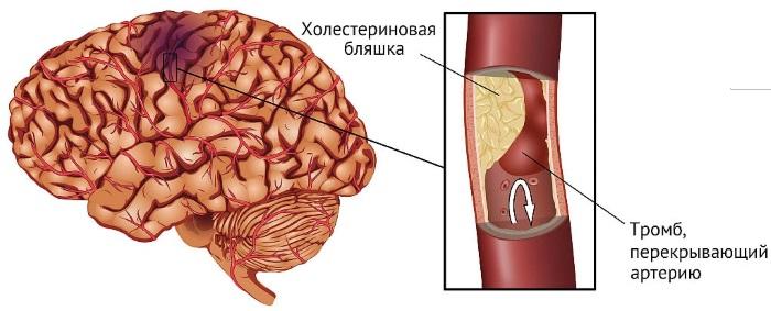 Болит голова в области затылка, шеи, висков. Причины и лечение