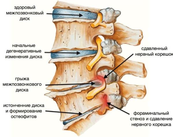 Боли в шее при повороте головы. Что делать, лечение, к какому врачу обратиться