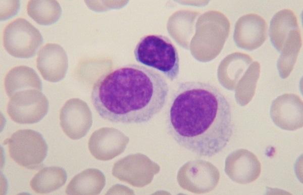 Что значат пониженные лимфоциты в крови у ребенка. Причины, болезни, лечение