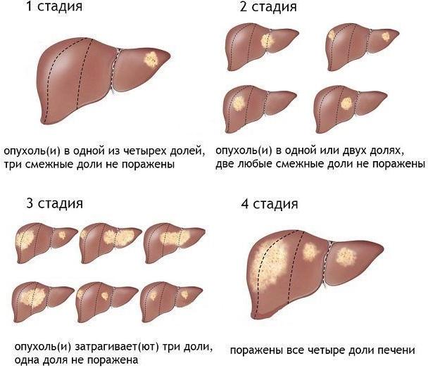 Гемангиома печени. Что это такое и лечение, народные средства, диета