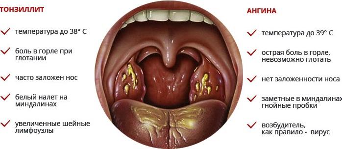 Хлорофиллипт для полоскания горла. Как разводить, применять раствор, состав, свойства, инструкция