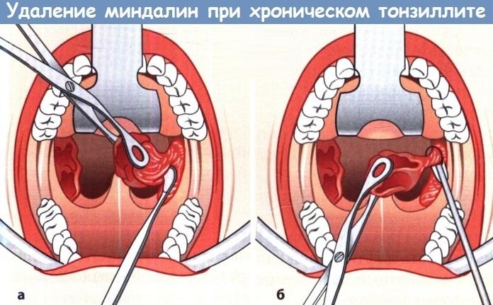 Хронический тонзиллит. Лечение у взрослых, симптомы, фото, рекомендации