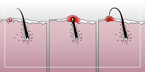 Ихтиоловая мазь. Инструкция по применению, от чего помогает, состав, цена, аналоги