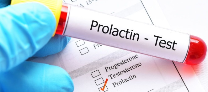 Как понизить пролактин у женщин народными средствами, таблетки