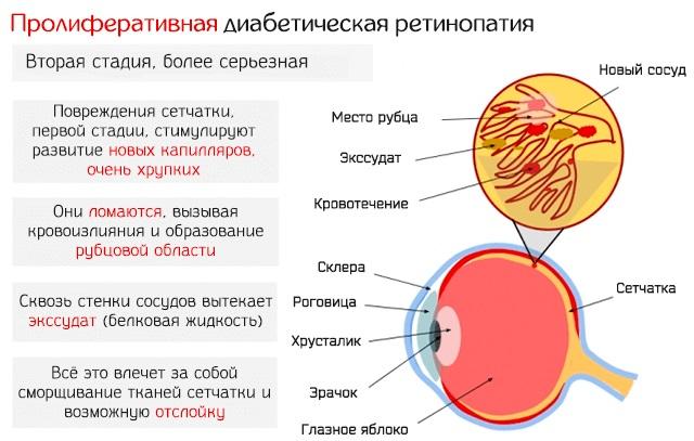 Катаракта. Причины, симптомы, лечение и профилактика. Народные средства, операция