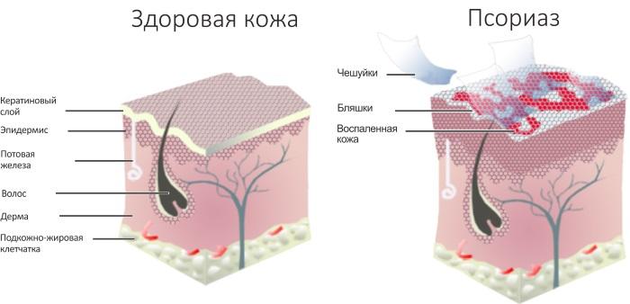 Куркума. Польза и вред, как принимать в лечебных целях, для похудения, здоровья суставов, волос, лица. Рецепты