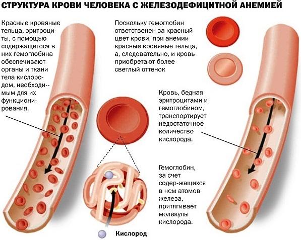MCHC в анализе крови. Что это такое, повышен, понижен, норма и отклонение. Что делать