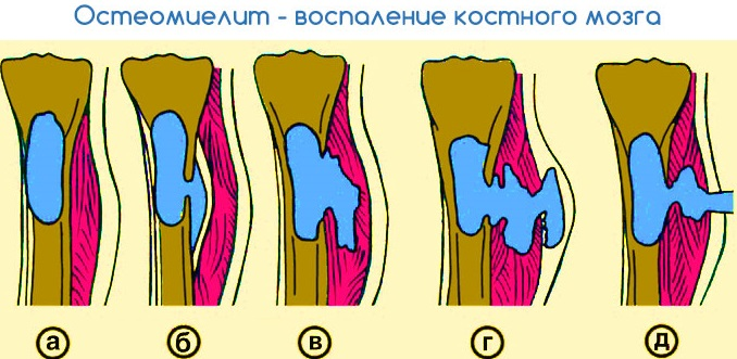 Клинический анализ крови нейтрофилы низкие thumbnail