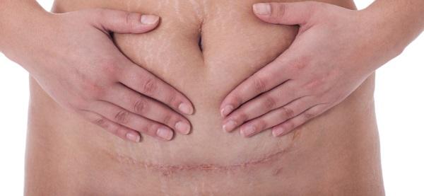 Низкая плацентация. Что это такое при беременности, родах, что значит, чем опасна, что делать